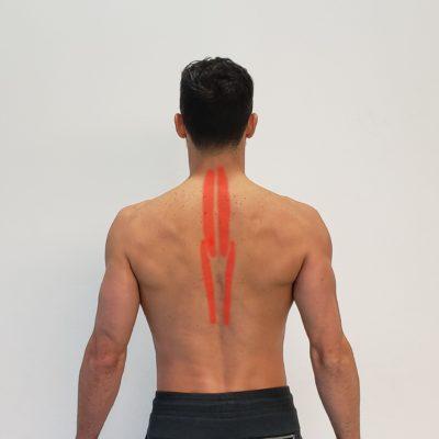 Músculos erectores de la espalda
