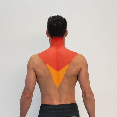 Músculo trapecio inferior