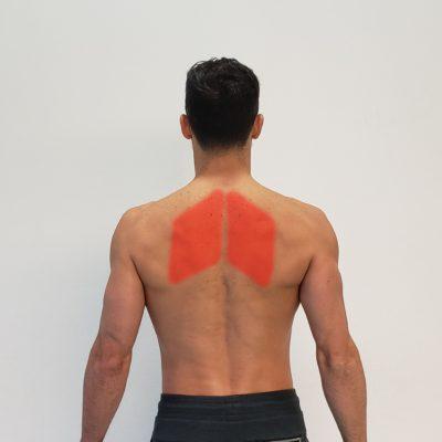 Músculos romboides